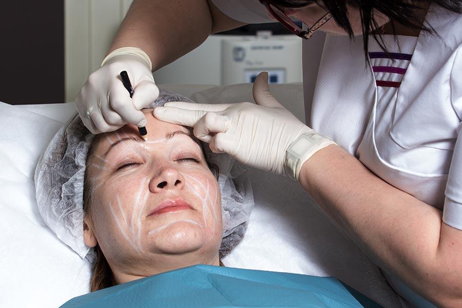Botox: 4 fakti, mida Sa botuliinotoksinist teadma pead