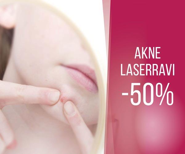 Seda sa ei ole veel proovinud! Akne laserravi -50%!