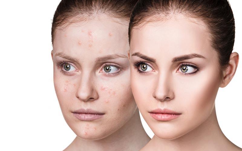 Akne laserravi